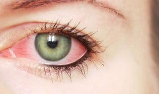 klimallı ortamın gözlere zararı